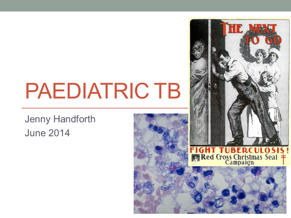 PAEDIATRIC TB Jenny Handforth June 2014
