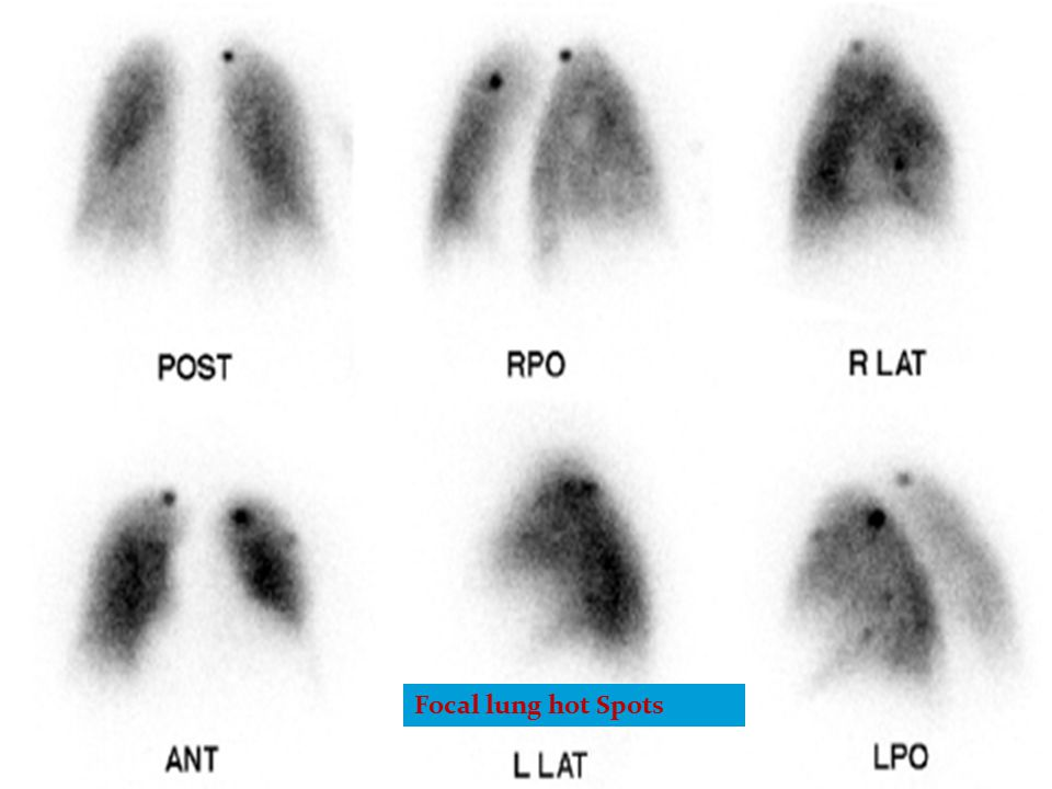 Focal lung hot Spots