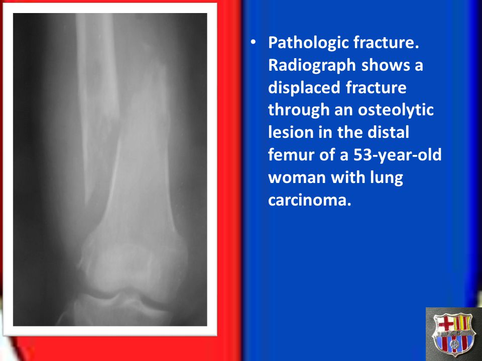 Pathologic fracture. Radiograph shows a displaced fracture through an osteolytic lesion in the distal femur of a 53-year-old woman with lung carcinoma