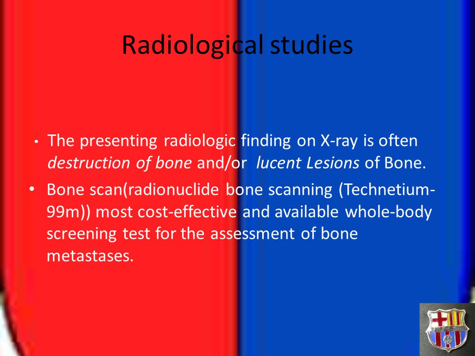 Radiological studies The presenting radiologic finding on X-ray is often destruction of bone and/or lucent Lesions of Bone. Bone scan(radionuclide bon