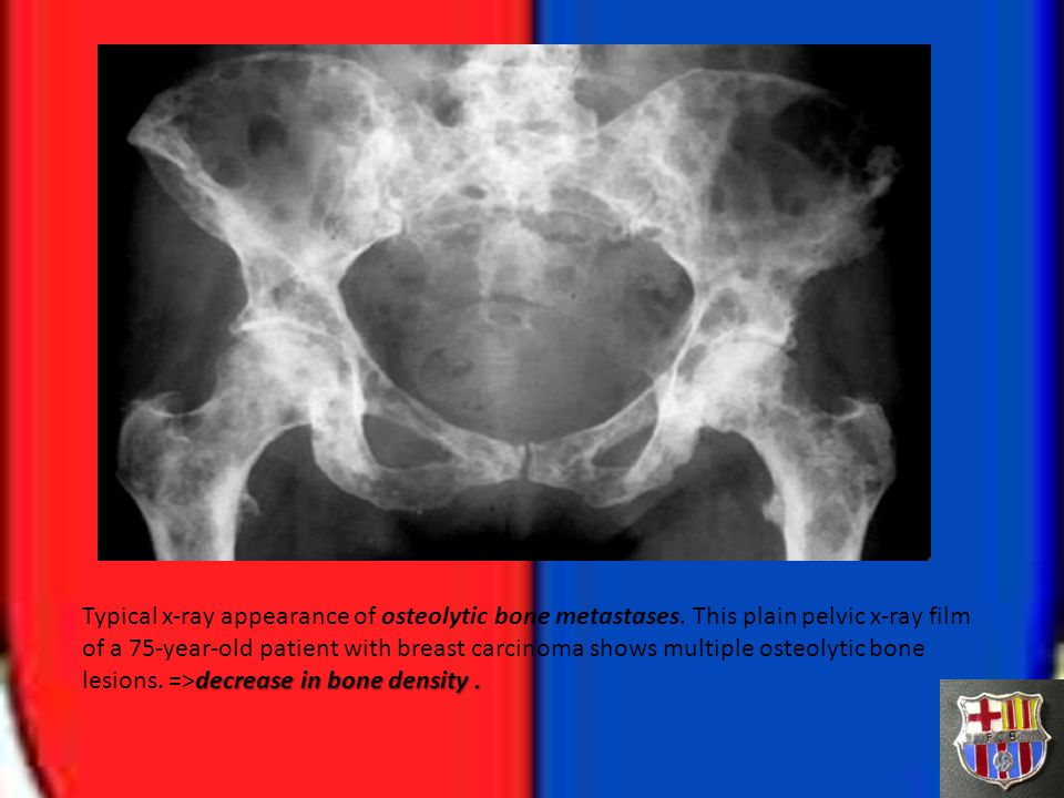decrease in bone density. Typical x-ray appearance of osteolytic bone metastases. This plain pelvic x-ray film of a 75-year-old patient with breast ca