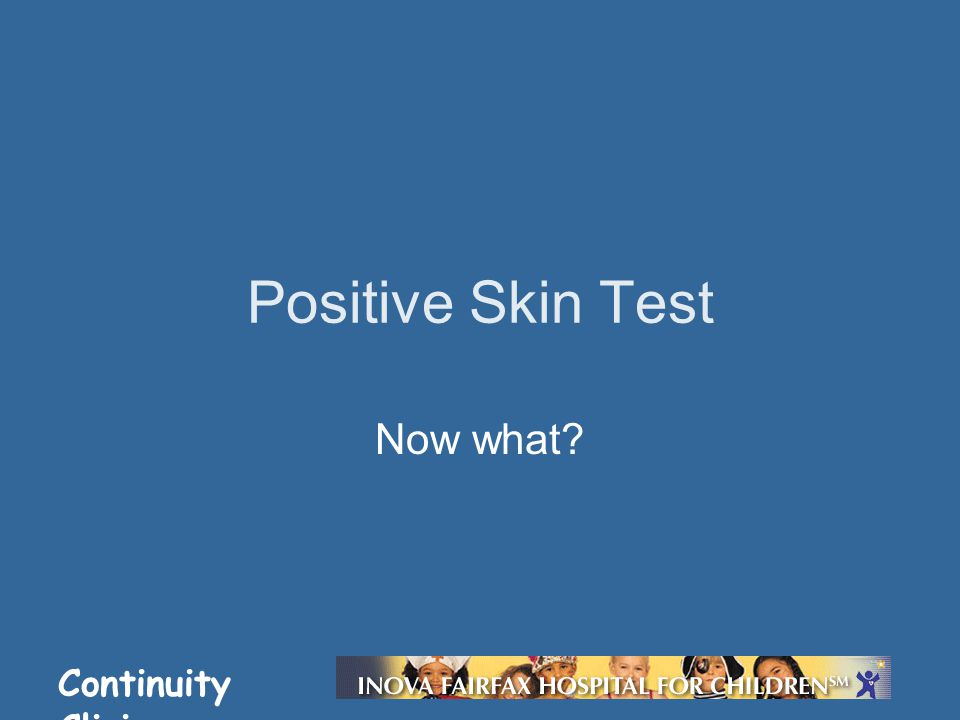 Continuity Clinic Positive Skin Test Now what