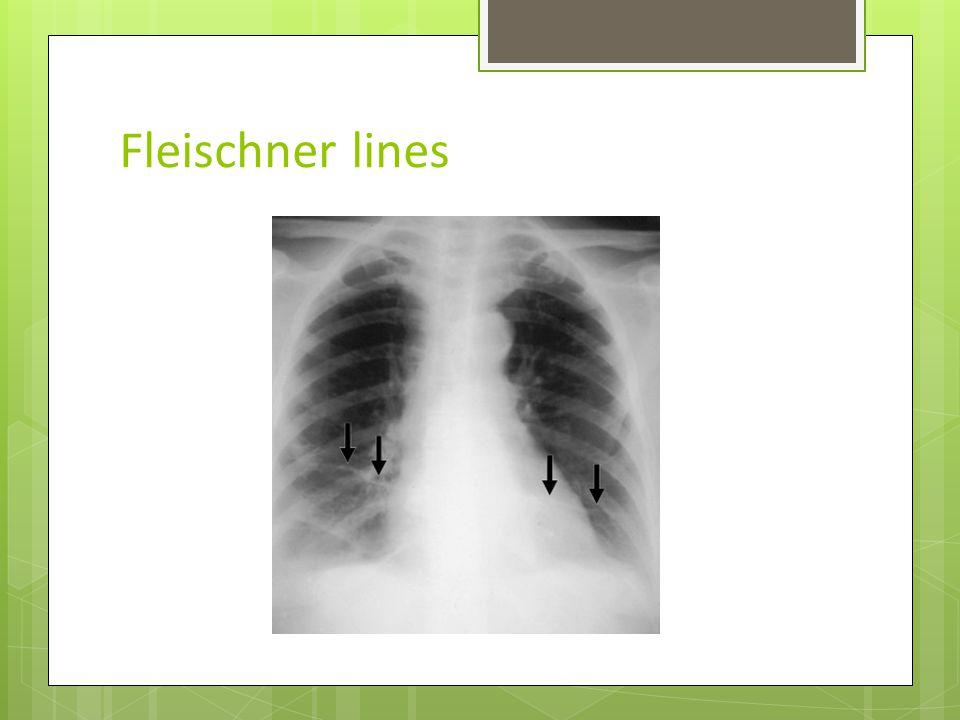 Fleischner lines