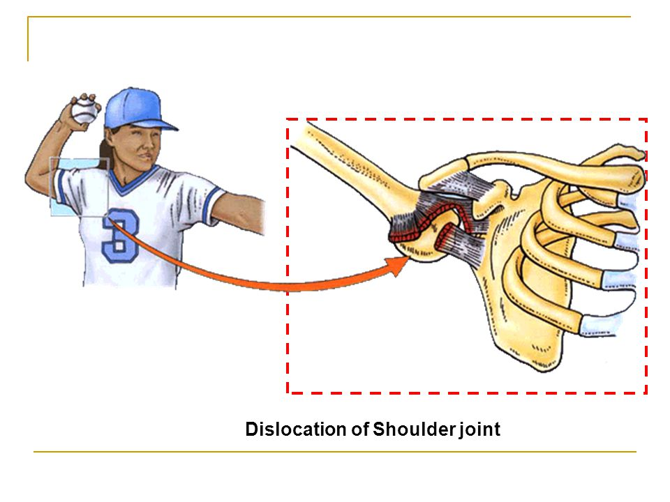Dislocation of Shoulder joint