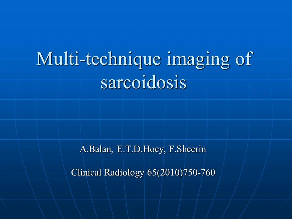 Figure 4 Cardiac magnetic resonance (CMR) demonstration of endomyocardial sarcoidosis.
