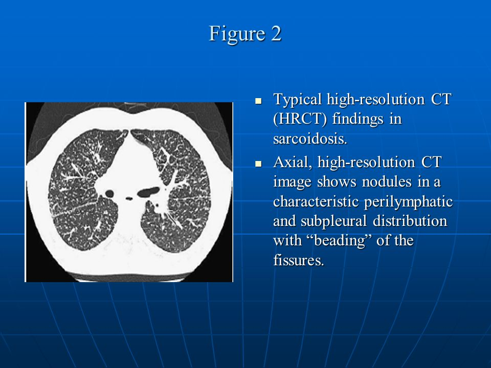 Figure 2 Typical high-resolution CT (HRCT) findings in sarcoidosis. Typical high-resolution CT (HRCT) findings in sarcoidosis. Axial, high-resolution