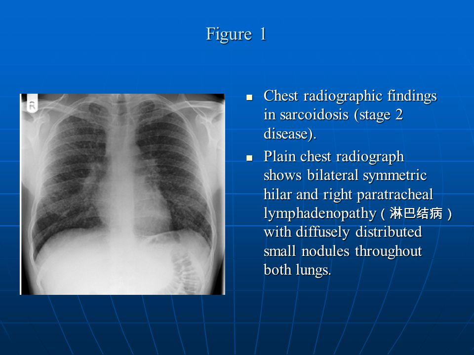 Conclusion Sarcoidosis is an important multisystem disorder with protean ( 多变的 ) imaging manifestations.