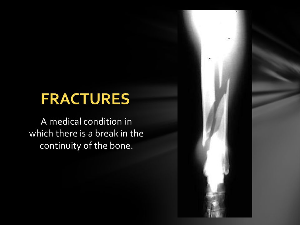 FRACTURES A medical condition in which there is a break in the continuity of the bone.