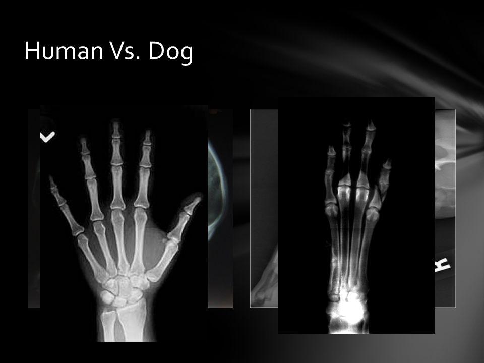 Human Vs. Dog