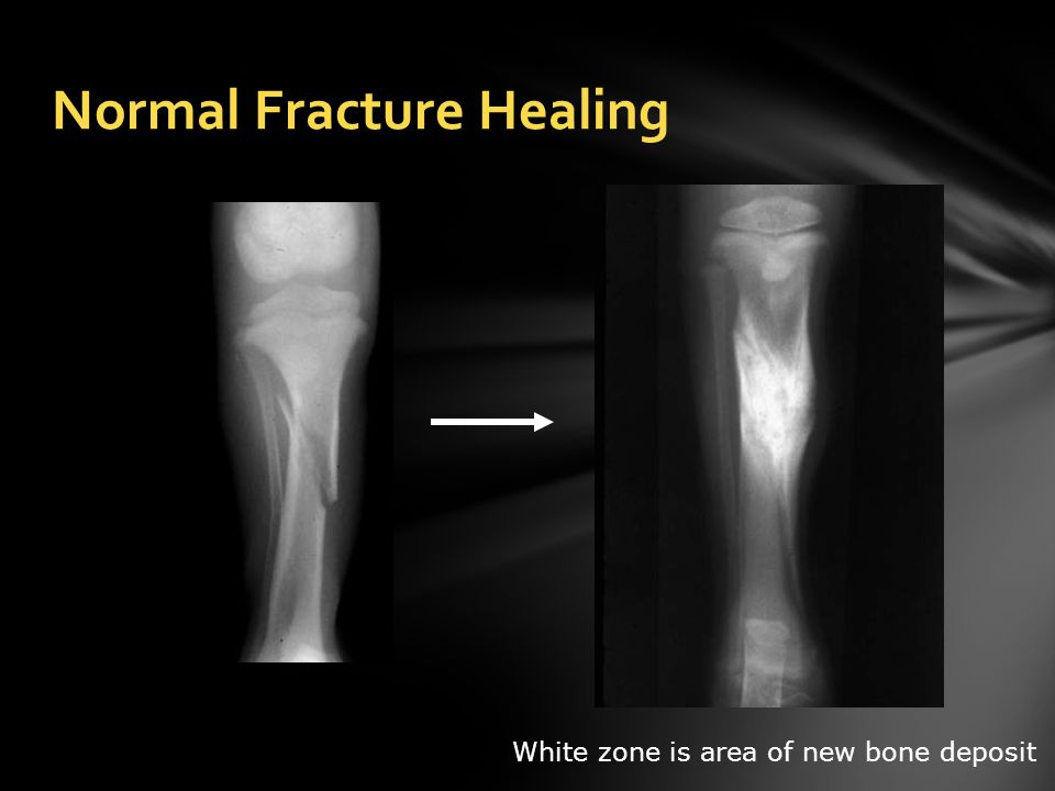 Normal Fracture Healing White zone is area of new bone deposit