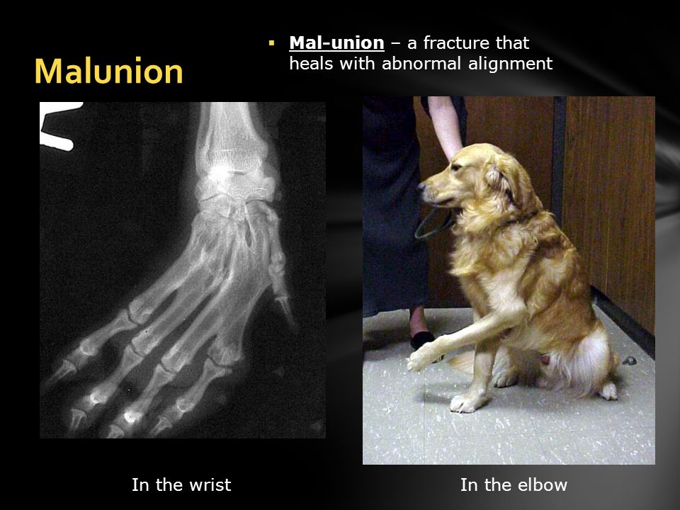 Malunion In the wristIn the elbow  Mal-union – a fracture that heals with abnormal alignment