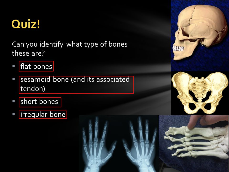 Protect Yourself  Osteoporosis is a bone disease where the bone mineral density is reduced.