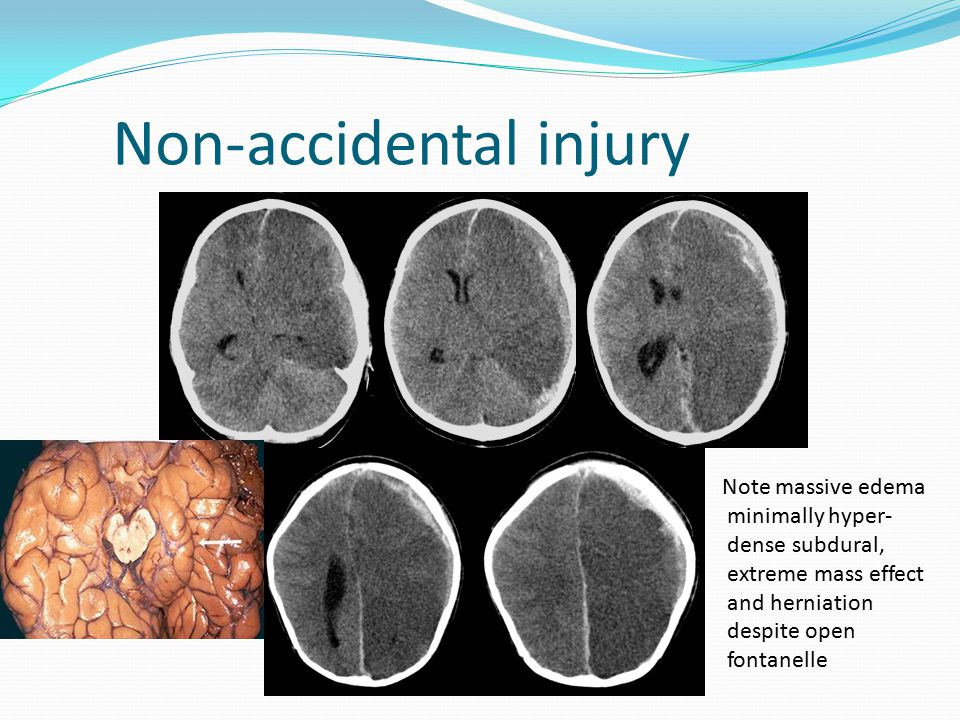 Non-accidental injury Note massive edema minimally hyper- dense subdural, extreme mass effect and herniation despite open fontanelle