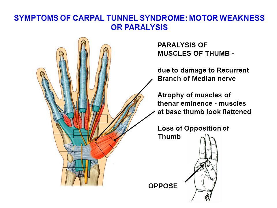 SYMPTOMS OF CARPAL TUNNEL SYNDROME: MOTOR WEAKNESS OR PARALYSIS PARALYSIS OF MUSCLES OF THUMB - due to damage to Recurrent Branch of Median nerve Atrophy of muscles of thenar eminence - muscles at base thumb look flattened Loss of Opposition of Thumb OPPOSE