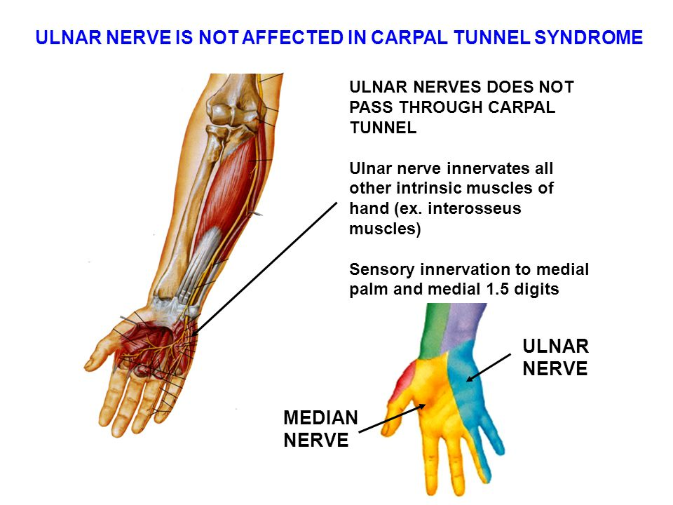 ULNAR NERVE IS NOT AFFECTED IN CARPAL TUNNEL SYNDROME ULNAR NERVES DOES NOT PASS THROUGH CARPAL TUNNEL Ulnar nerve innervates all other intrinsic muscles of hand (ex.