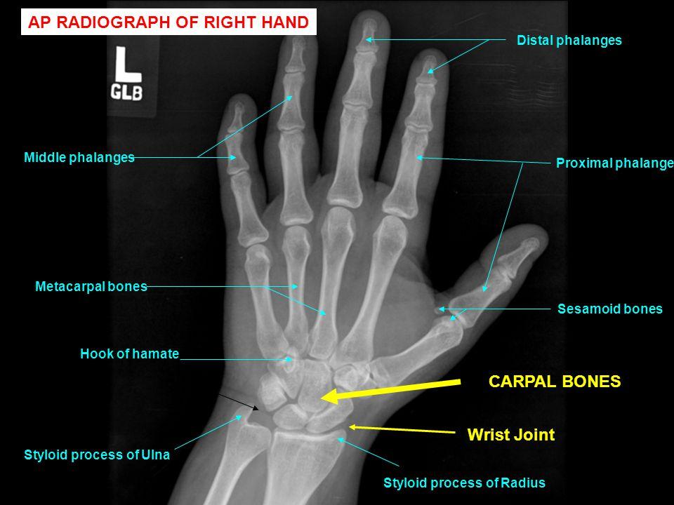 Styloid process of Ulna Sesamoid bones Distal phalanges Middle phalanges Proximal phalanges Metacarpal bones Styloid process of Radius Hook of hamate AP RADIOGRAPH OF RIGHT HAND CARPAL BONES Wrist Joint