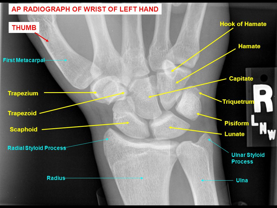 Trapezium Pisiform Ulnar Styloid Process Hook of Hamate Radial Styloid Process Trapezoid Capitate Hamate Scaphoid Lunate Triquetrum Radius Ulna First Metacarpal AP RADIOGRAPH OF WRIST OF LEFT HAND THUMB