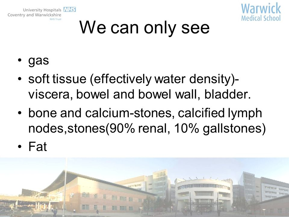 We can only see gas soft tissue (effectively water density)- viscera, bowel and bowel wall, bladder.
