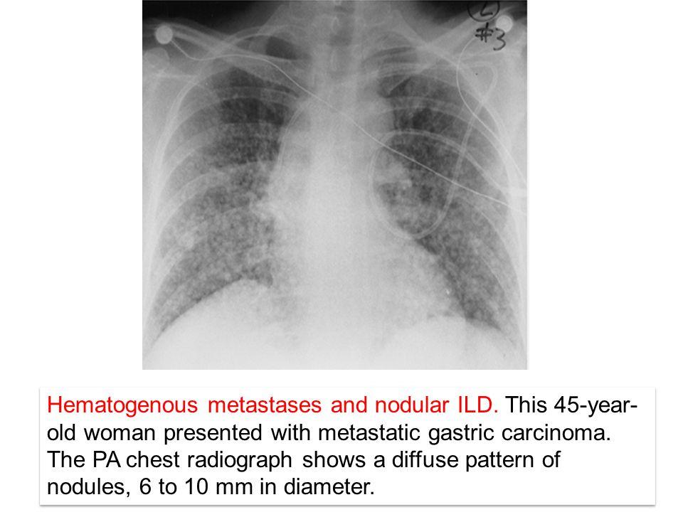 Hematogenous metastases and nodular ILD.