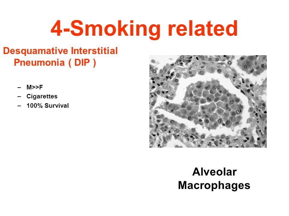 4-Smoking related Desquamative Interstitial Pneumonia ( DIP ) –M>>F –Cigarettes –100% Survival Alveolar Macrophages