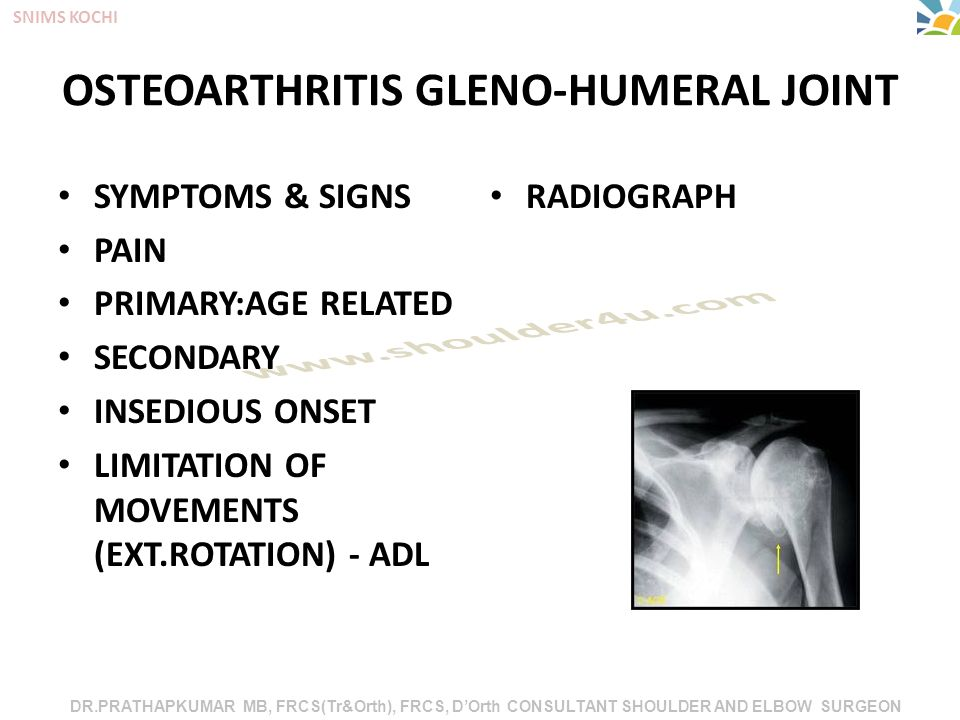 DR.PRATHAPKUMAR MB, FRCS(Tr&Orth), FRCS, D'Orth CONSULTANT SHOULDER AND ELBOW SURGEON SNIMS KOCHI OSTEOARTHRITIS GLENO-HUMERAL JOINT SYMPTOMS & SIGNS PAIN PRIMARY:AGE RELATED SECONDARY INSEDIOUS ONSET LIMITATION OF MOVEMENTS (EXT.ROTATION) - ADL RADIOGRAPH