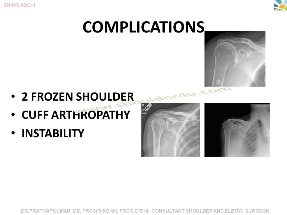 DR.PRATHAPKUMAR MB, FRCS(Tr&Orth), FRCS, D'Orth CONSULTANT SHOULDER AND ELBOW SURGEON SNIMS KOCHI COMPLICATIONS 2 FROZEN SHOULDER CUFF ARTHROPATHY INSTABILITY