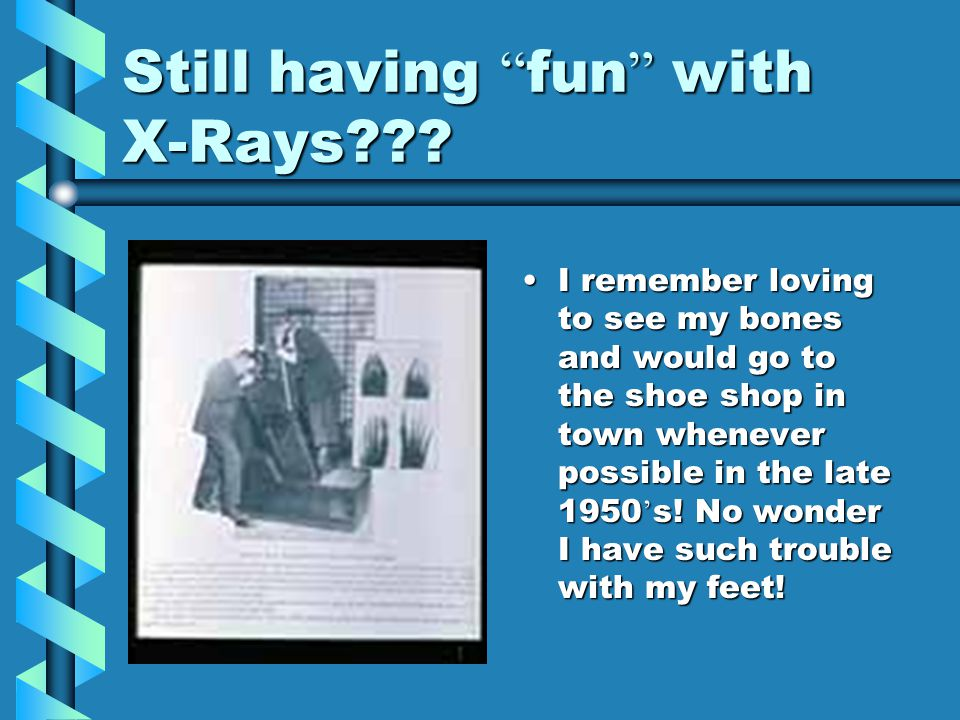 """Still having """" fun """" with X-Rays??? I remember loving to see my bones and would go to the shoe shop in town whenever possible in the late 1950 ' s! No"""