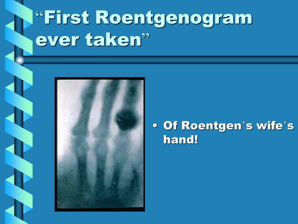 """ First Roentgenogram ever taken "" Of Roentgen ' s wife ' s hand!"