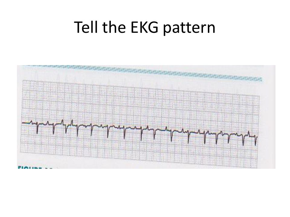 Tell the EKG pattern