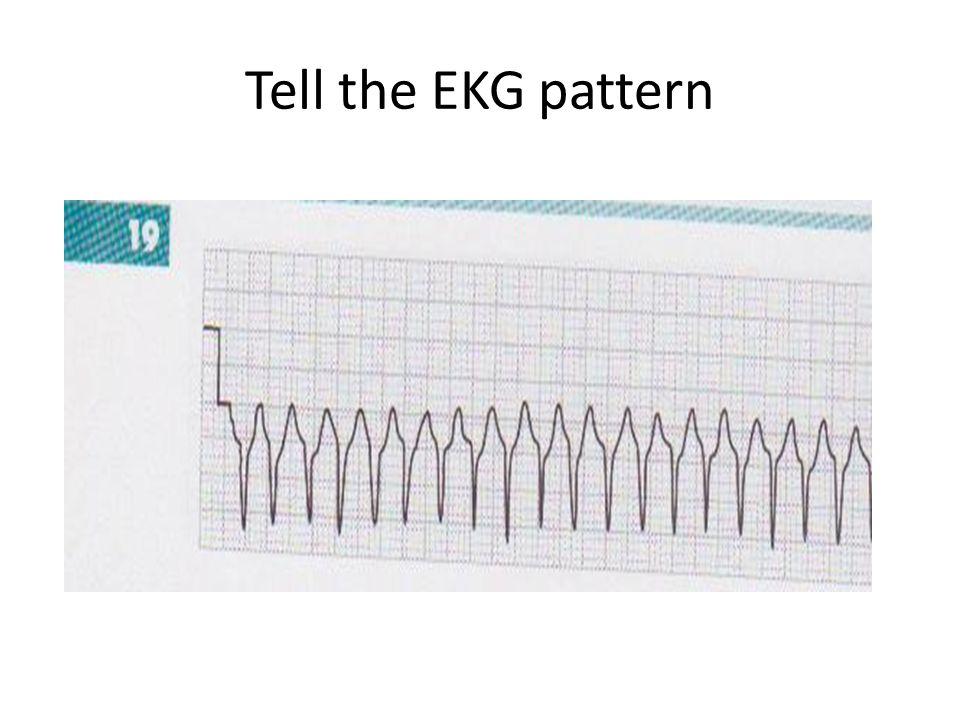 Tell the EKG pattern