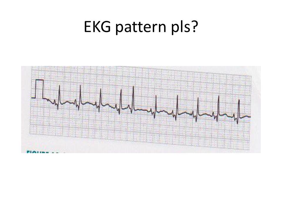 EKG pattern pls