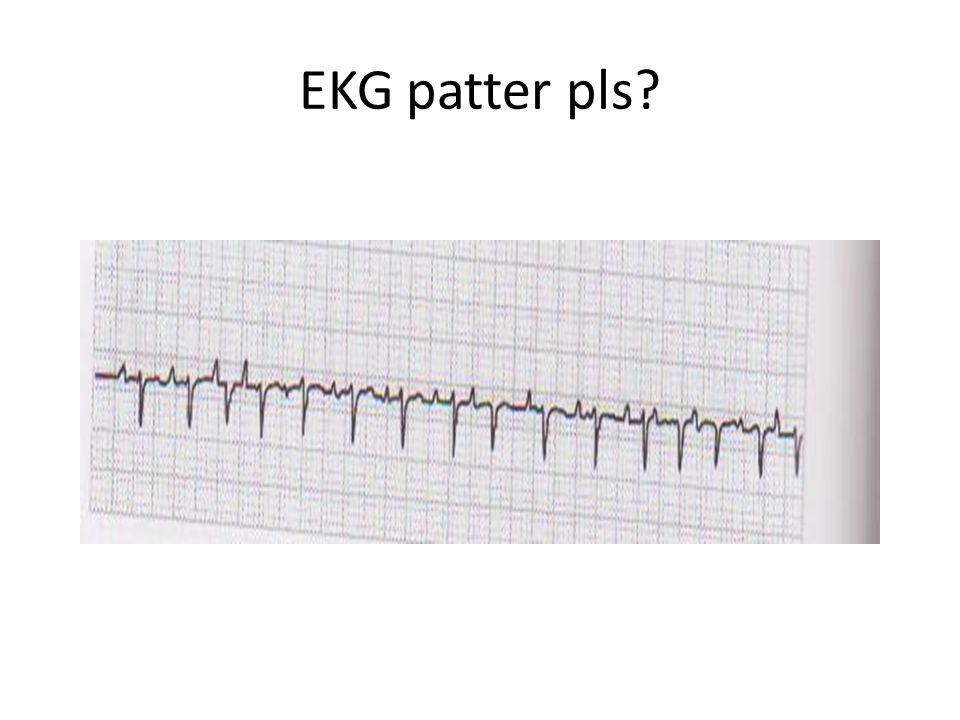 EKG patter pls