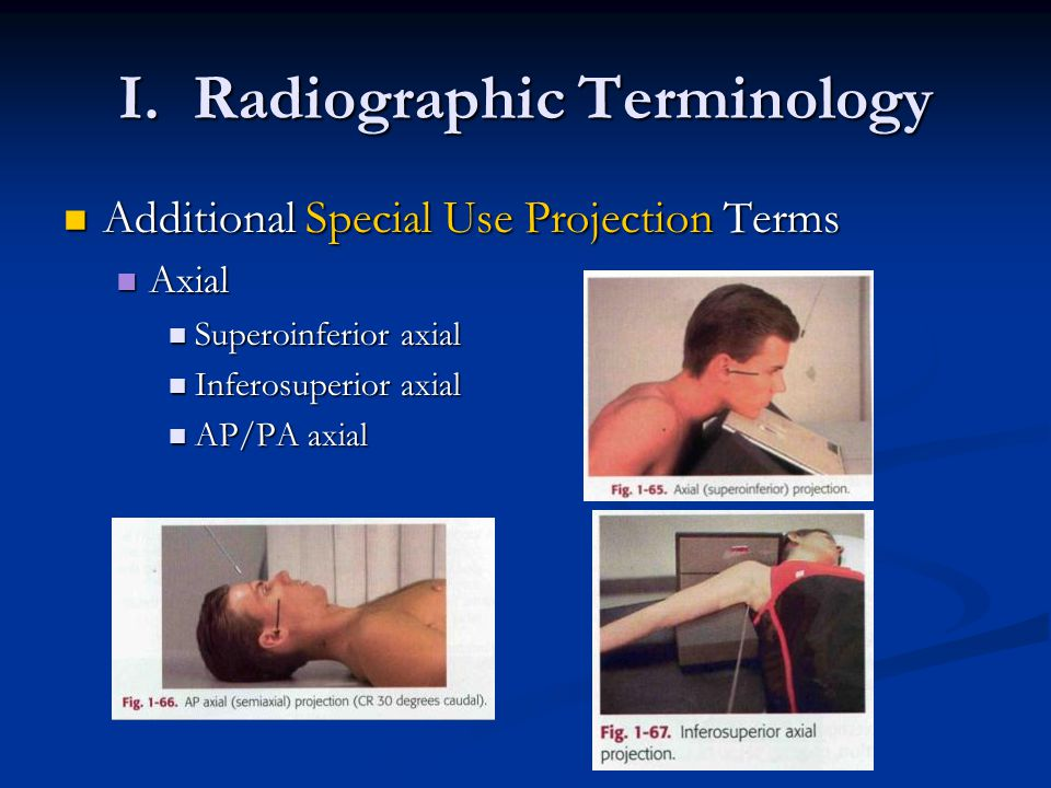 I. Radiographic Terminology Additional Special Use Projection Terms Additional Special Use Projection Terms Axial Axial Superoinferior axial Superoinf