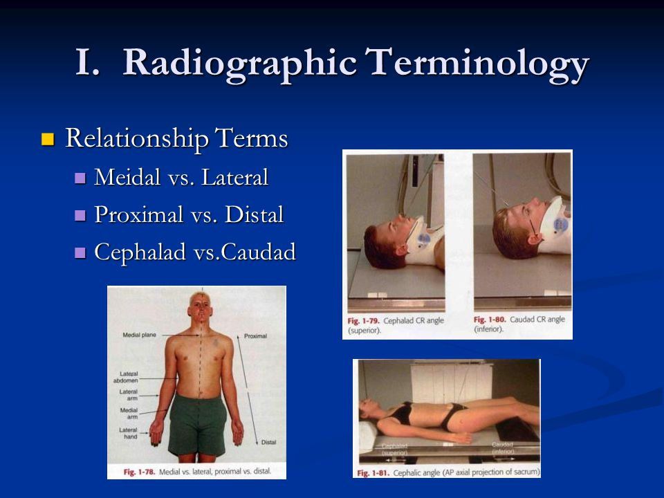 I. Radiographic Terminology Relationship Terms Relationship Terms Meidal vs.