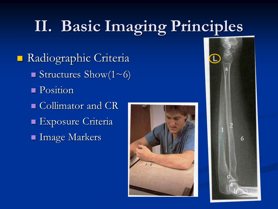 II. Basic Imaging Principles Radiographic Criteria Radiographic Criteria Structures Show(1~6) Structures Show(1~6) Position Position Collimator and CR