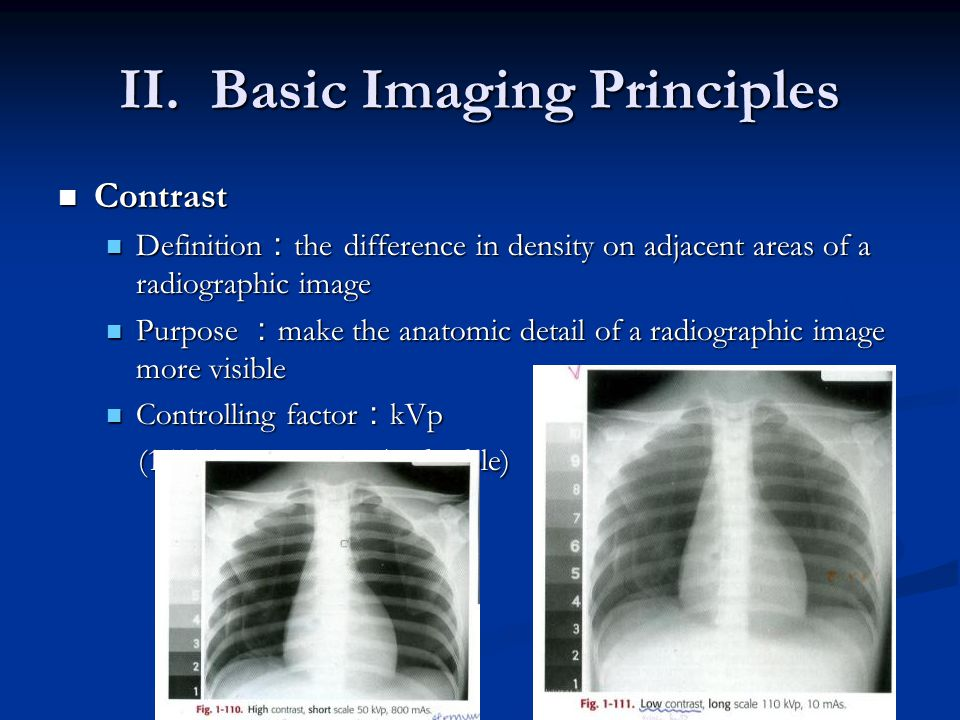 II. Basic Imaging Principles Contrast Contrast Definition : the difference in density on adjacent areas of a radiographic image Definition : the diffe