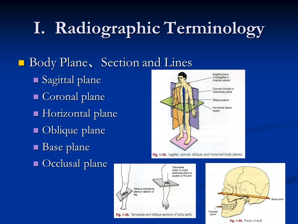 I. Radiographic Terminology Body Plane 、 Section and Lines Body Plane 、 Section and Lines Sagittal plane Sagittal plane Coronal plane Coronal plane Ho