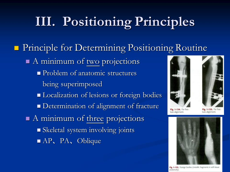 III. Positioning Principles Principle for Determining Positioning Routine Principle for Determining Positioning Routine A minimum of two projections A