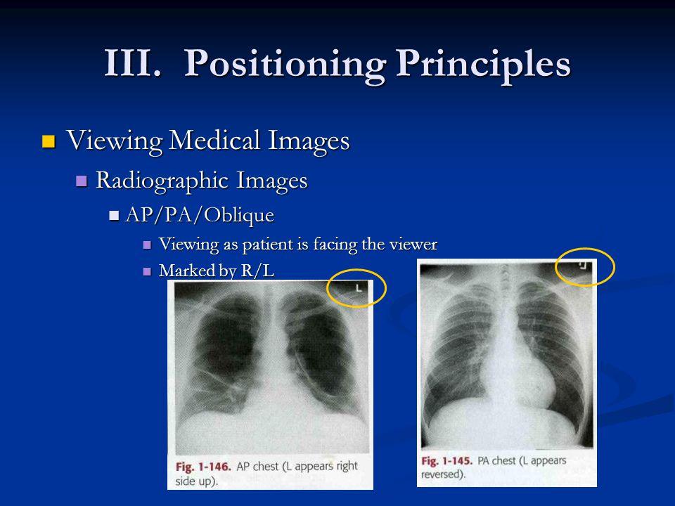 III. Positioning Principles Viewing Medical Images Viewing Medical Images Radiographic Images Radiographic Images AP/PA/Oblique AP/PA/Oblique Viewing