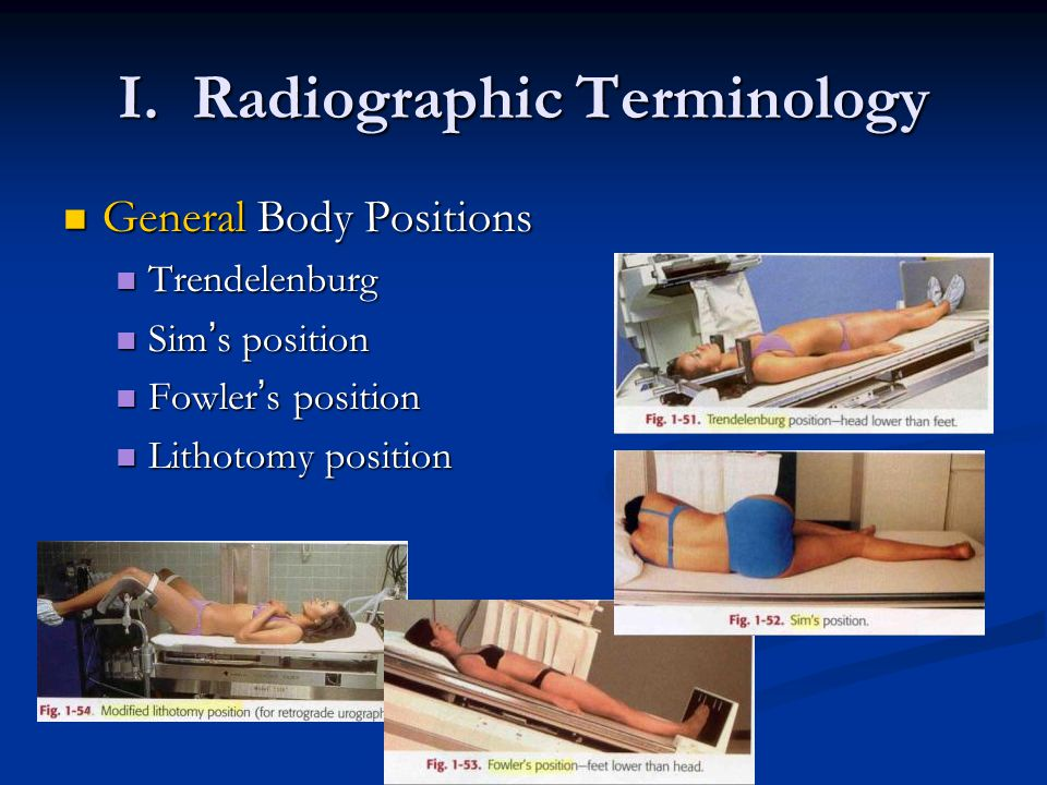 I. Radiographic Terminology General Body Positions General Body Positions Trendelenburg Trendelenburg Sim ' s position Sim ' s position Fowler ' s pos