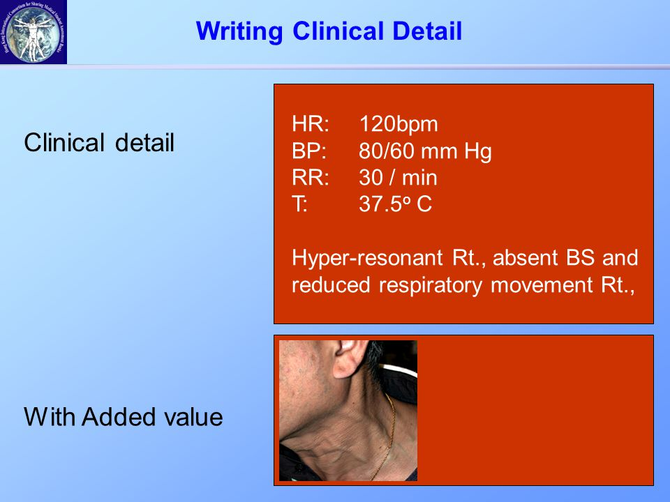 Clinical detail With Added value HR:120bpm BP:80/60 mm Hg RR:30 / min T:37.5 o C Hyper-resonant Rt., absent BS and reduced respiratory movement Rt., Writing Clinical Detail