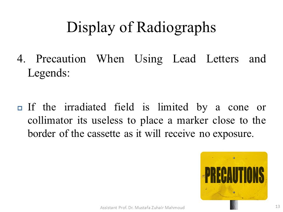 Display of Radiographs 4. Precaution When Using Lead Letters and Legends:  If the irradiated field is limited by a cone or collimator its useless to