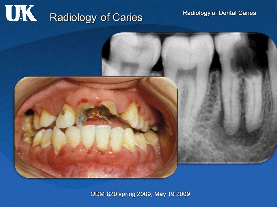 Radiology of Dental Caries Radiology of Caries ODM 820 spring 2009, May 19 2009