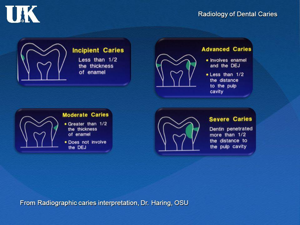 Radiology of Dental Caries From Radiographic caries interpretation, Dr. Haring, OSU