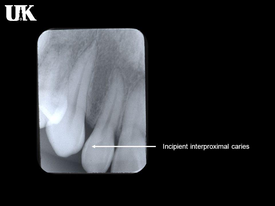 Incipient interproximal caries