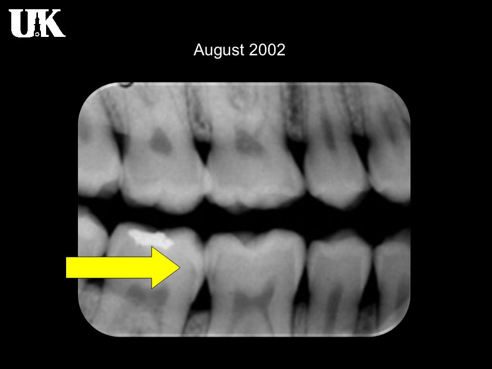 Radiology of Dental Caries Radiographic detection of lesions - Root surfaces Root surface lesions involve both cementum and dentin and are Root surface lesions involve both cementum and dentin and are associated with gingival recession.