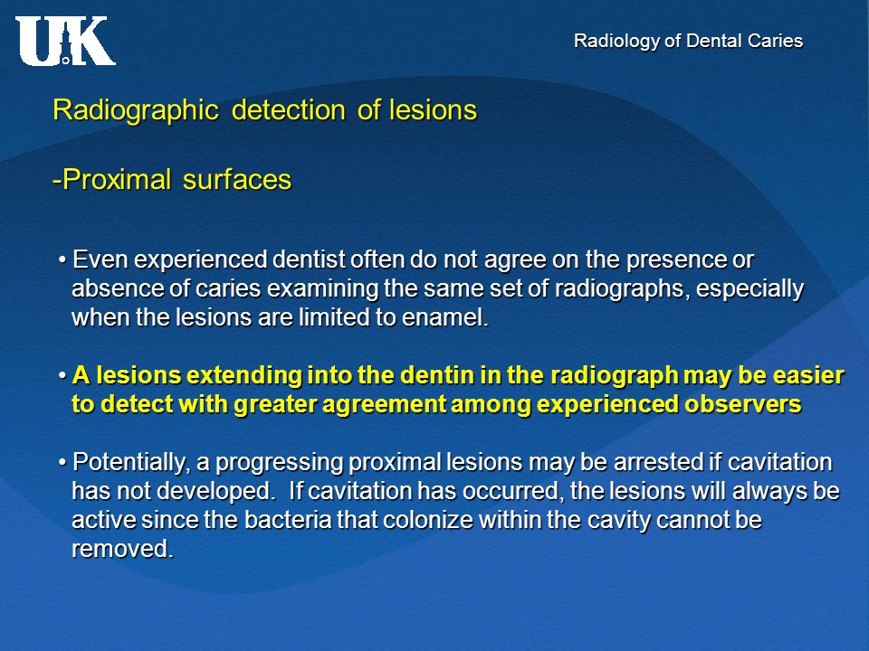 Radiology of Dental Caries Radiographic detection of lesions -Proximal surfaces Even experienced dentist often do not agree on the presence or Even ex