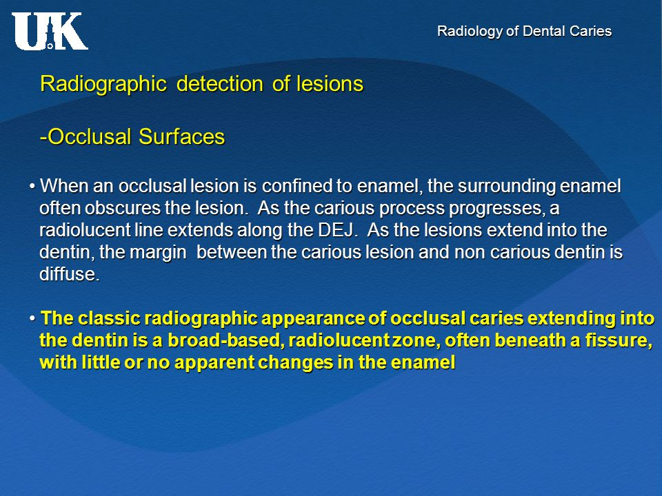 Radiology of Dental Caries Radiographic detection of lesions -Occlusal Surfaces When an occlusal lesion is confined to enamel, the surrounding enamel
