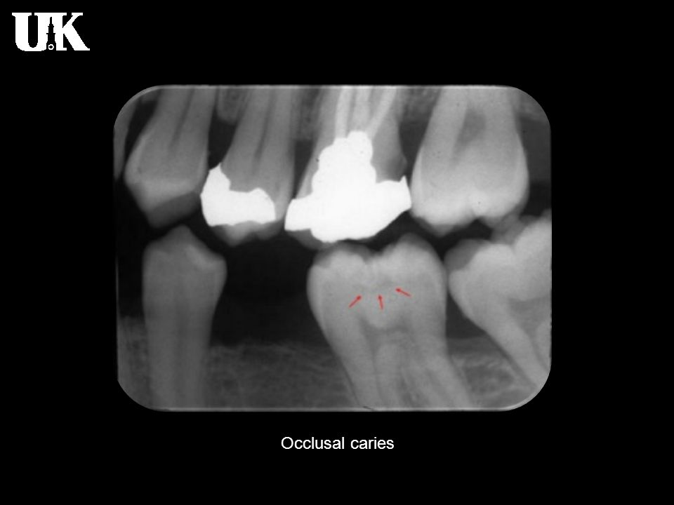 Occlusal caries