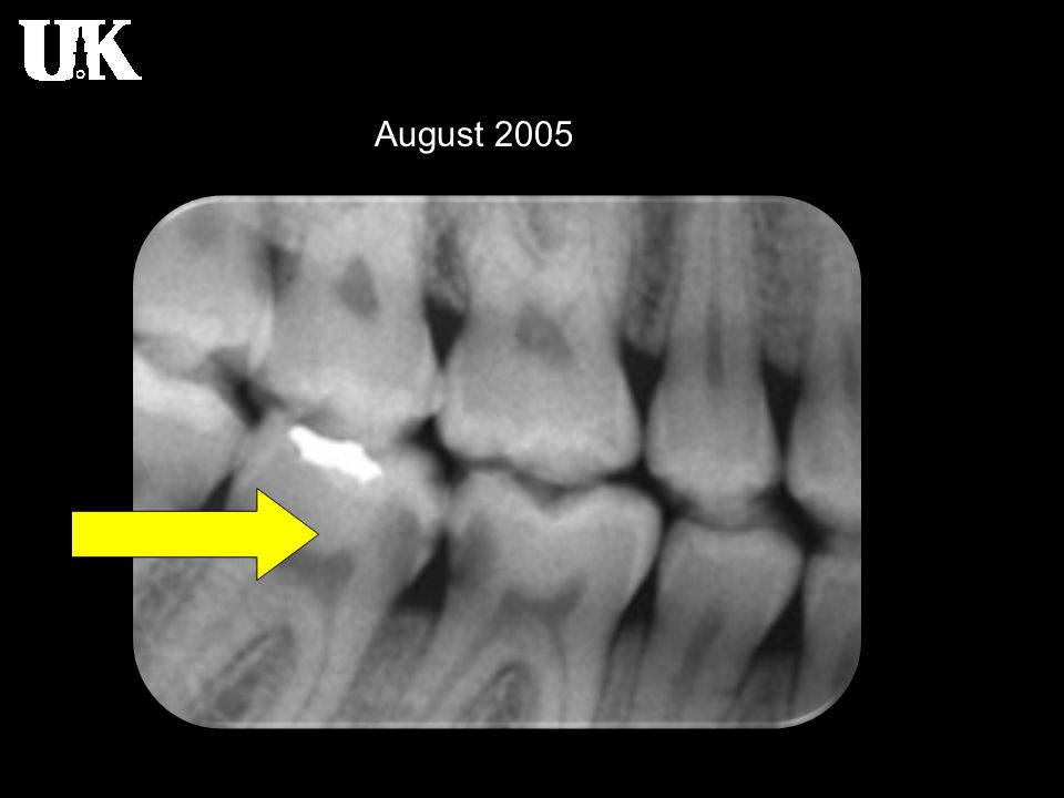 Radiology of Dental Caries Radiographic detection of lesions Conditions resembling caries Abrasion Abrasion refers to the wearing away of tooth structure from the friction with an foreign object  for example tooth brushing On radiographs, tooth abrasion appears as a well defined horizontal radiolucency along the cervical region of a tooth